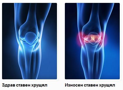 Остеоартрит лечение